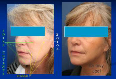 Botox, Injections, Mesolift