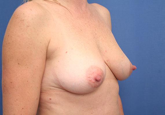 Prothèses seins