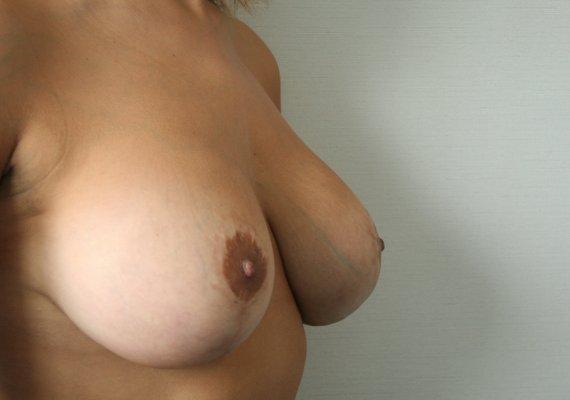 Réduction des seins, Ptose